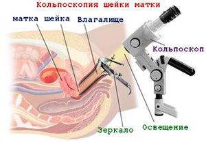 кольпоскопия на ранних сроках беременности