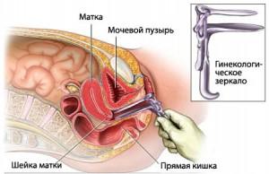 Осмотр у гинеколога как проходит 3 фотография
