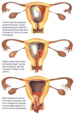 таблетки на ранних сроках беременности