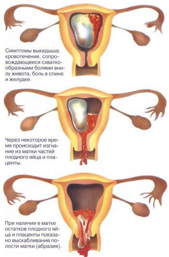 коричневая мазня при беременности на ранних сроках