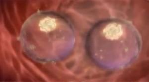 Месячные во время беременности на ранних сроках