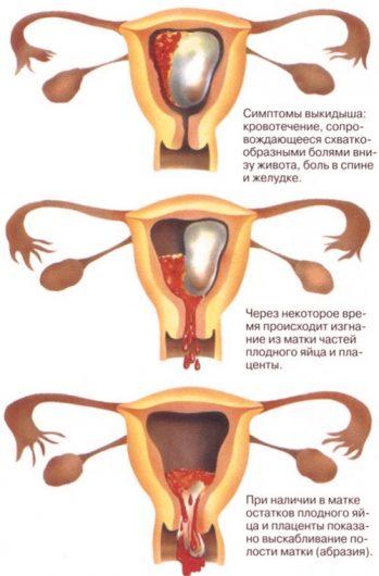Как определить беременность в домашних условиях на раннем сроке