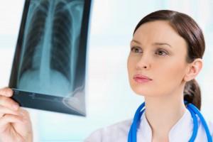 Последствия флюорографии для беременных