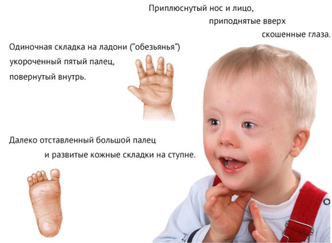 Внешние признаки проявления синдрома Дауна