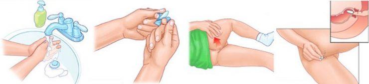 Свечи папаверин при беременности на ранних сроках