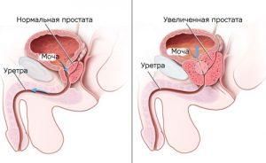 Расшифровка анализа биопсия предстательной железы