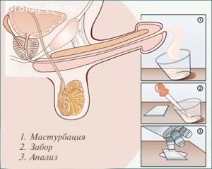 Процесс сдачи спермограммы