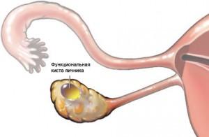 Киста при беременности на ранних сроках