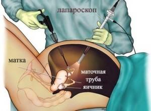 Лапароскопия при беременности