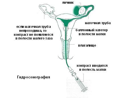 Трубно-перитонеальное бесплодие: есть ли шанс стать мамой