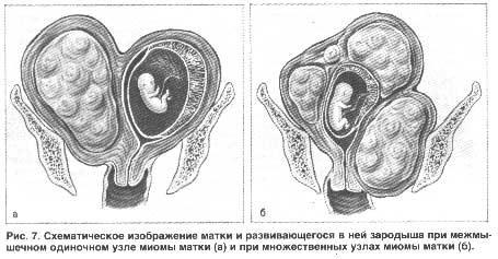Миома и развитие плода