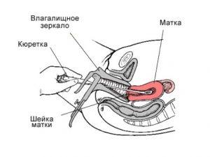 Чистка матки при сгустках после родов