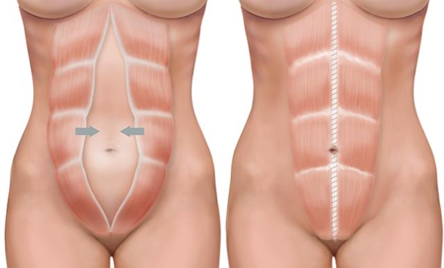 Диастаз прямых мышц живота после родов