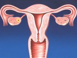Эндометрит после кесарева сечения