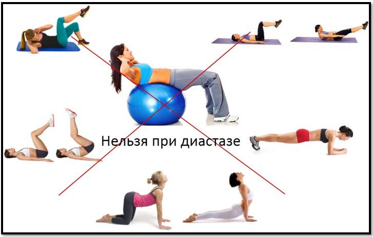 Запрещенные при диастазе упражнения
