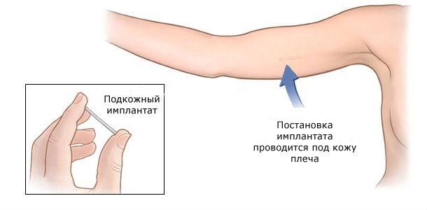 Гормональный имплант как средство контрацепции