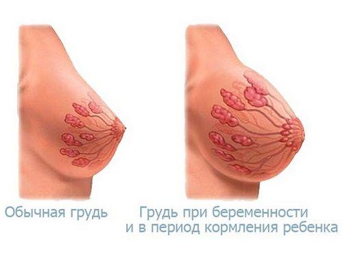 Грудь до и после родов