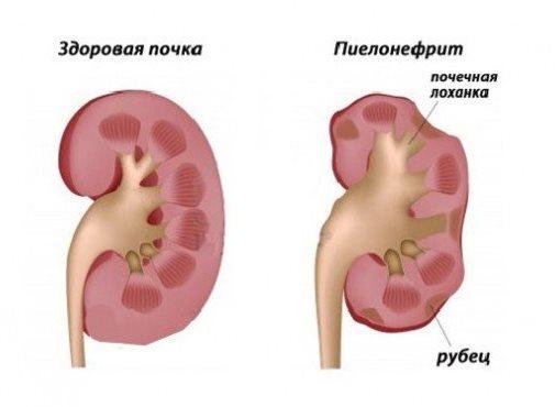 Пиелонефрит как причина болей в спине