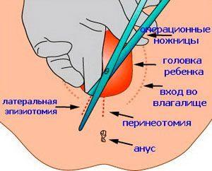 Причины наложения швов на промежность после родов
