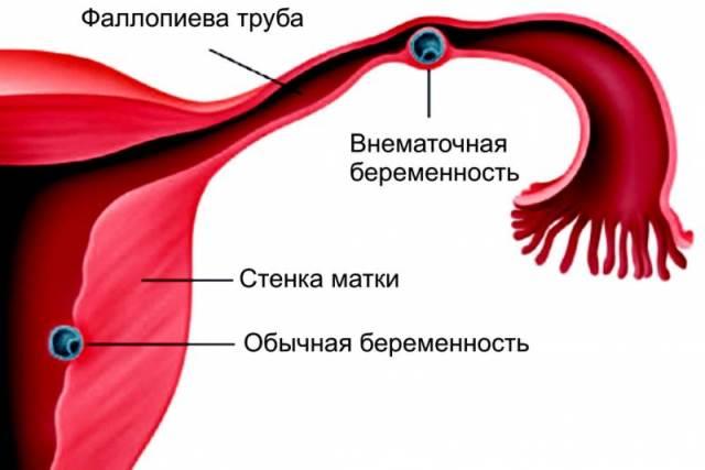 Что такое внематочная беременность