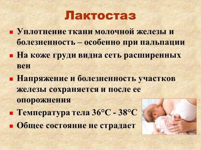 Лактостаз после родов