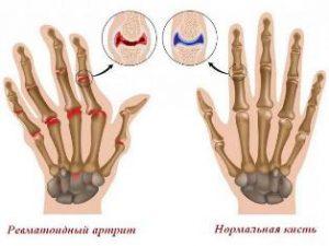Ревматоидный артрит после родов