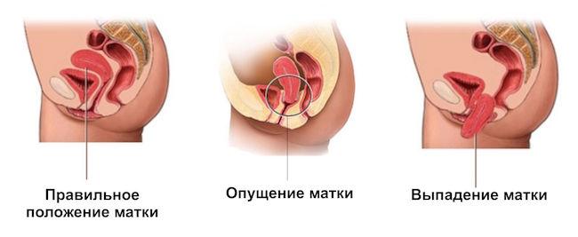 Опущение матки после родов