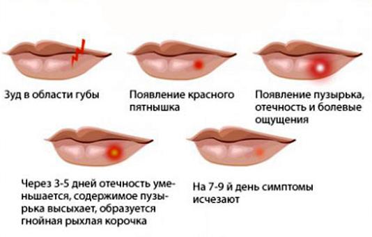 Герпес на губах