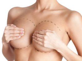 Маммопластика после родов
