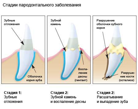 хрупкость зубов