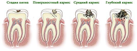 стадии развития кариеса после родов