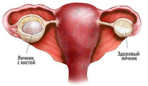 Киста яичника после родов
