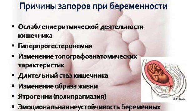 Причины запора при беременности