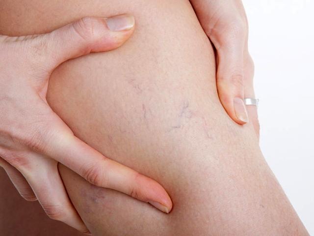 Варикоз на ногах после родов