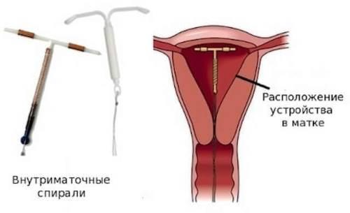 Внутриматочная спираль после родов
