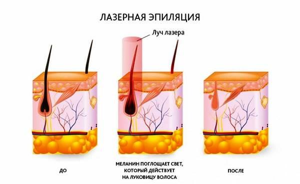 Лазерная эпиляция после родов