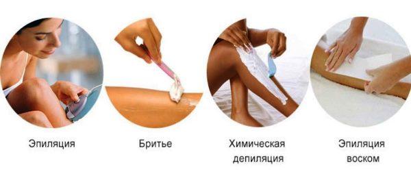 Эпиляция после родов