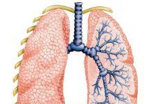 Пневмония после родов