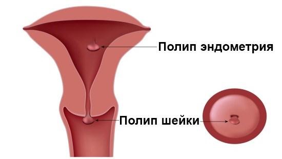 Полип шейки матки