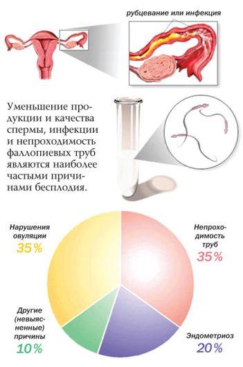признаки внематочной