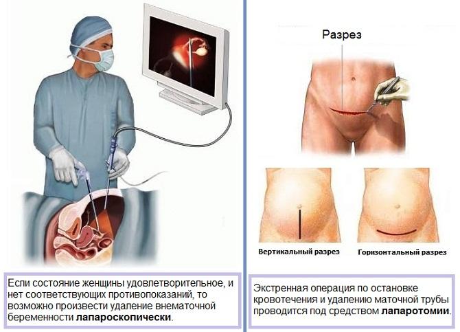 операция при внематочной беременности