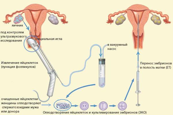 Процедура экстракорпорального оплодотворения