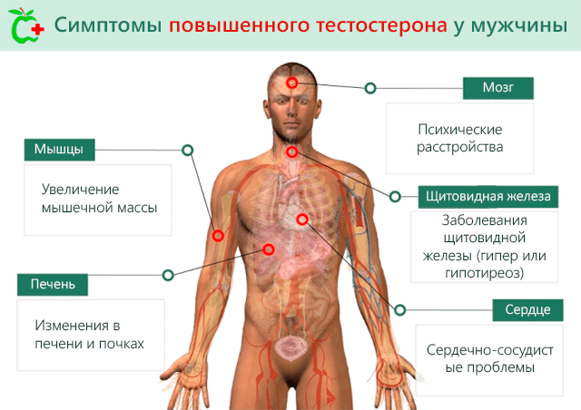 Симптомы повышенного тестостерона у мужчин