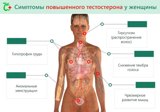 Симптомы повышенного тестостерона у женщин