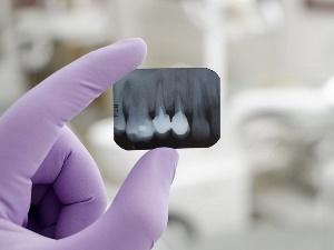 Рентген зуба при планировании беременности