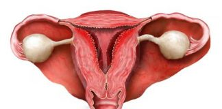 ЭКО после эндометрита