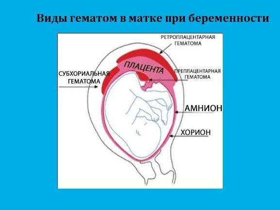 Виды гематом в матке при беременности