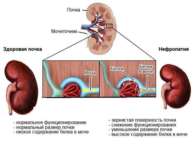 Нефропатия как причина белка в моче