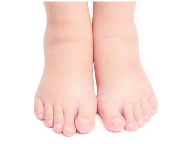 Отек ног при беременности