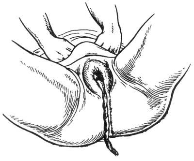 Третий период родов